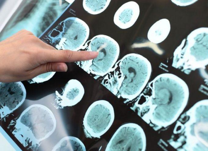 Un juego gratuito ayudará a luchar contra el Alzheimer